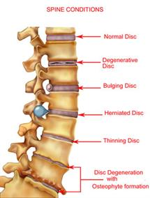 Between your vertebrae are discs, which act as shock absorbers. When these discs become damaged they will be a source of back pain.