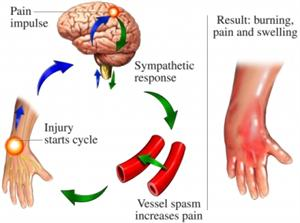 Diagram of the cycle of CRPS/RSD.