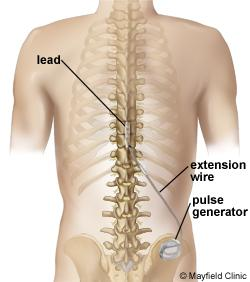 Neurostimulation delivers low voltage electrical stimulation to the spinal cord or targeted peripheral nerve to block the sensation of pain.
